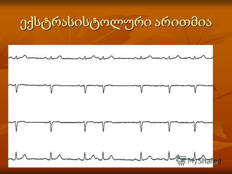 Activité électrique du coeur23