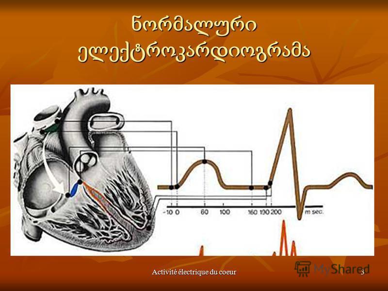 Activité électrique du coeur3