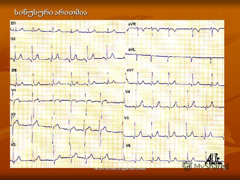 Activité électrique du coeur6