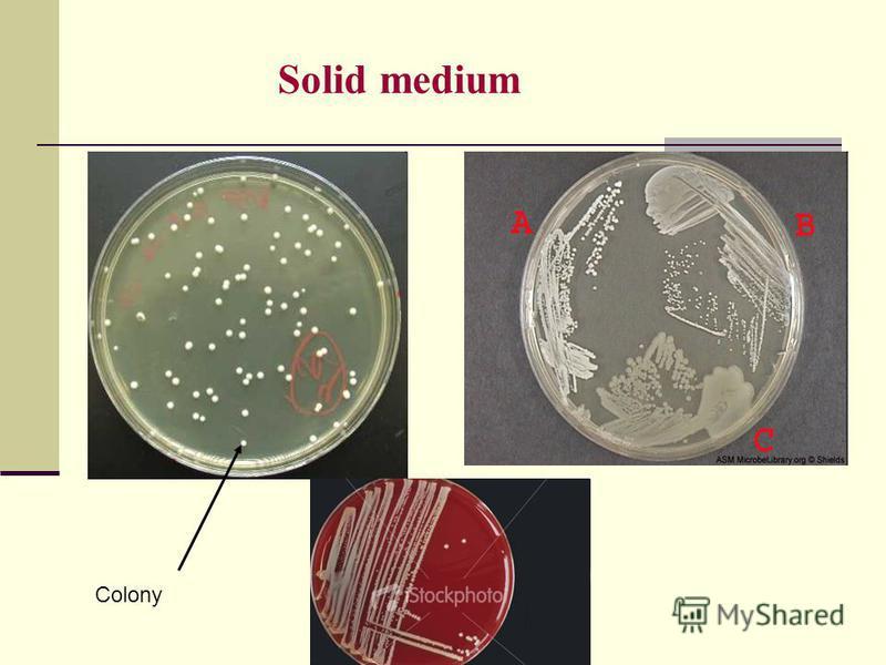 Solid medium Colony