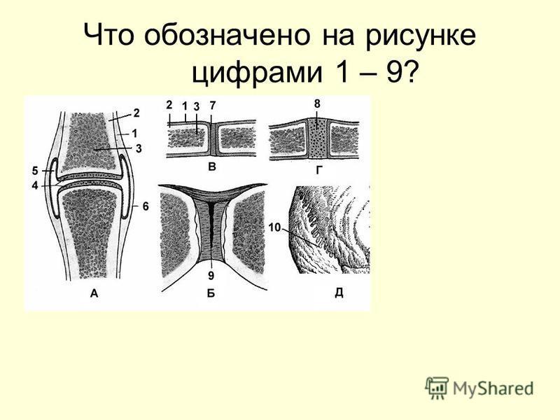 Что обозначено на рисунке цифрами 1 – 9?