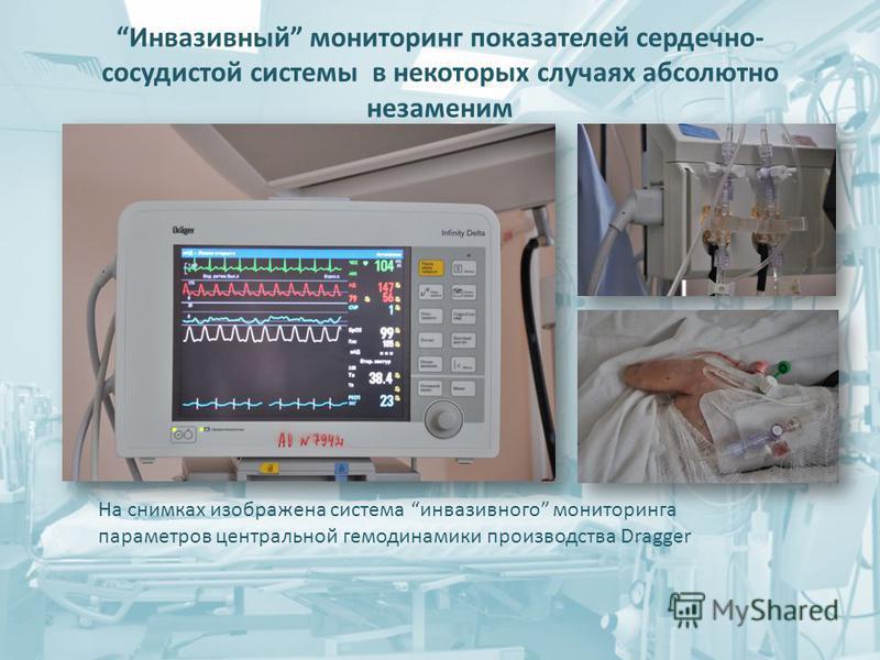 Инвазивный мониторинг показателей сердечно- сосудистой системы в некоторых случаях абсолютно незаменим На снимках изображена система инвазивного мониторинга параметров центральной гемодинамики производства Dragger
