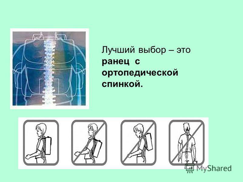 Лучший выбор – это ранец с ортопедической спинкой.