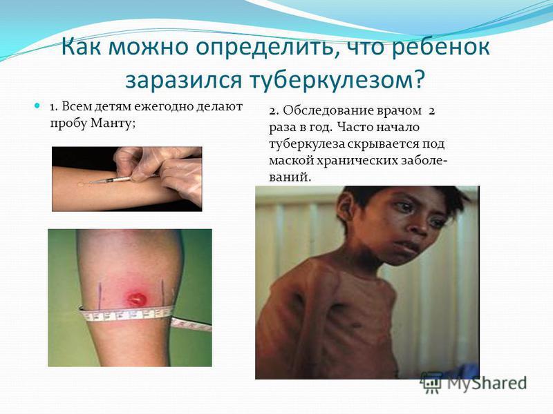 Как можно определить, что ребенок заразился туберкулезом? 1. Всем детям ежегодно делают пробу Манту; 2. Обследование врачом 2 раза в год. Часто начало туберкулеза скрывается под маской хронических заболеваний.
