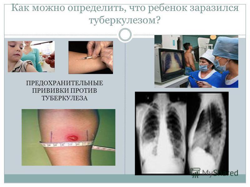 Как можно определить, что ребенок заразился туберкулезом? ПРЕДОХРАНИТЕЛЬНЫЕ ПРИВИВКИ ПРОТИВ ТУБЕРКУЛЕЗА