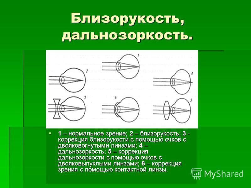 Близорукость, дальнозоркость. 1 – нормальное зрение; 2 – близорукость; 3 - коррекция близорукости с помощью очков с двояковогнутыми линзами; 4 – дальнозоркость; 5 – коррекция дальнозоркости с помощью очков с двояковыпуклыми линзами; 6 – коррекция зре