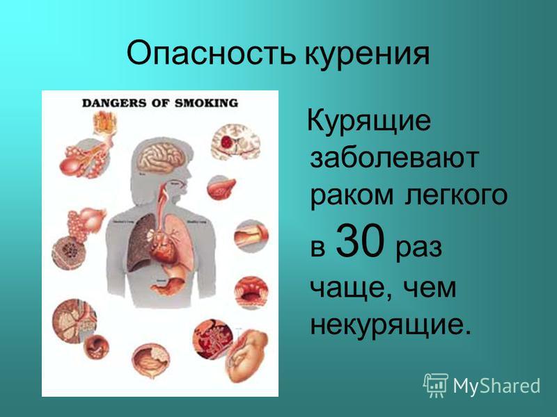 Опасность курения Курящие заболевают раком легкого в 30 раз чаще, чем некурящие.