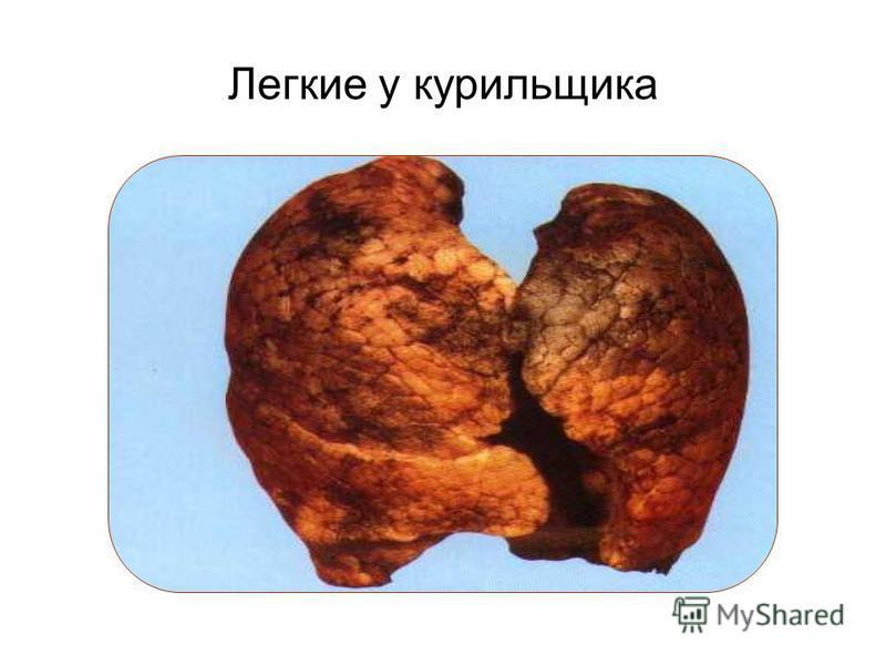 Легкие у курильщика
