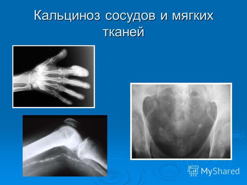 Кальциноз сосудов и мягких тканей