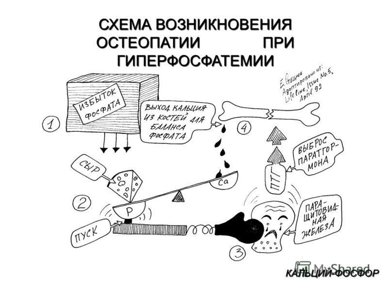 КАЛЬЦИЙ-ФОСФОР СХЕМА ВОЗНИКНОВЕНИЯ ОСТЕОПАТИИ ПРИ ГИПЕРФОСФАТЕМИИ