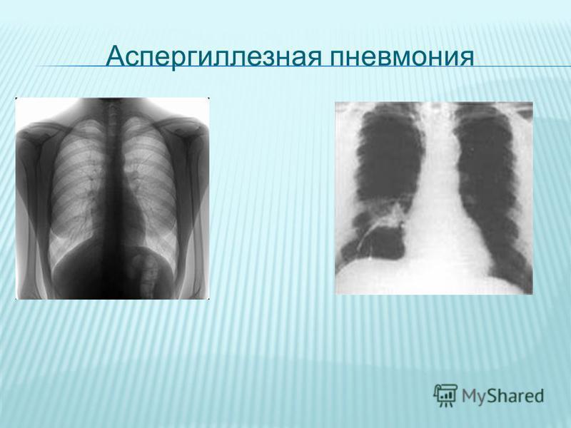 Аспергиллезная пневмония