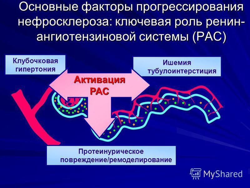 Основные факторы прогрессирования нефросклероза: ключевая роль ренин- ангиотензиновой системы (РАС) Ишемия тубулоинтерстиция Клубочковая гипертония Протеинурическое повреждение/ремоделирование Активация РАС