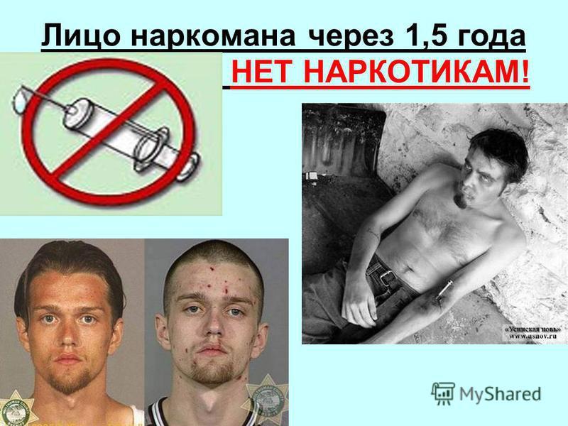 Лицо наркомана через 1,5 года НЕТ НАРКОТИКАМ!