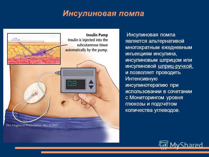 Инсулиновая помпа Инсулиновая помпа является альтернативой многократным ежедневным инъекциям инсулина, инсулиновым шприцом или инсулиновой шприц-ручкой, и позволяет проводить Интенсивную инсулинотерапию при использовании в сочетании с Мониторингом ур