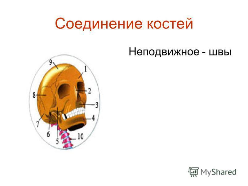 Соединение костей Неподвижное - швы