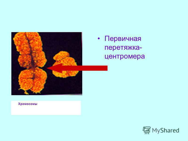 Хромосомы Первичная перетяжка- центромера