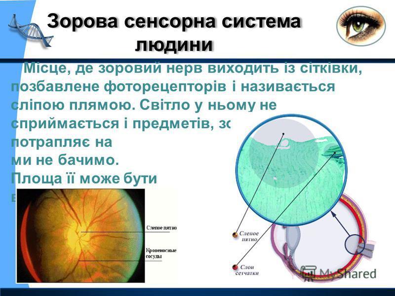 Місце, де зоровий нерв виходить із сітківки, позбавлене фоторецепторів і називається сліпою плямою. Світло у ньому не сприймається і предметів, зображення яких потрапляє на цю ділянку, ми не бачимо. Площа її може бути від 2,5 до 6 кв.мм.