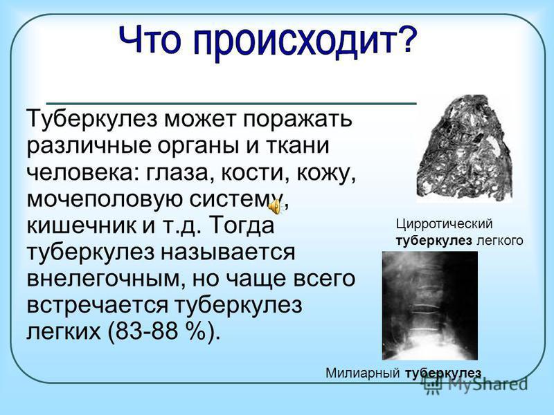 Туберкулез может поражать различные органы и ткани человека: глаза, кости, кожу, мочеполовую систему, кишечник и т.д. Тогда туберкулез называется внелегочным, но чаще всего встречается туберкулез легких (83-88 %). Цирротический туберкулез легкого Мил