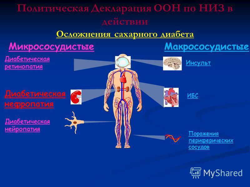 Микрососудистые Макрососудистые Поражения периферических сосудов ИБС Диабетическая ретинопатия Диабетическая нефропатия Диабетическая нейропатия Инсульт Политическая Декларация ООН по НИЗ в действии Осложнения сахарного диабета