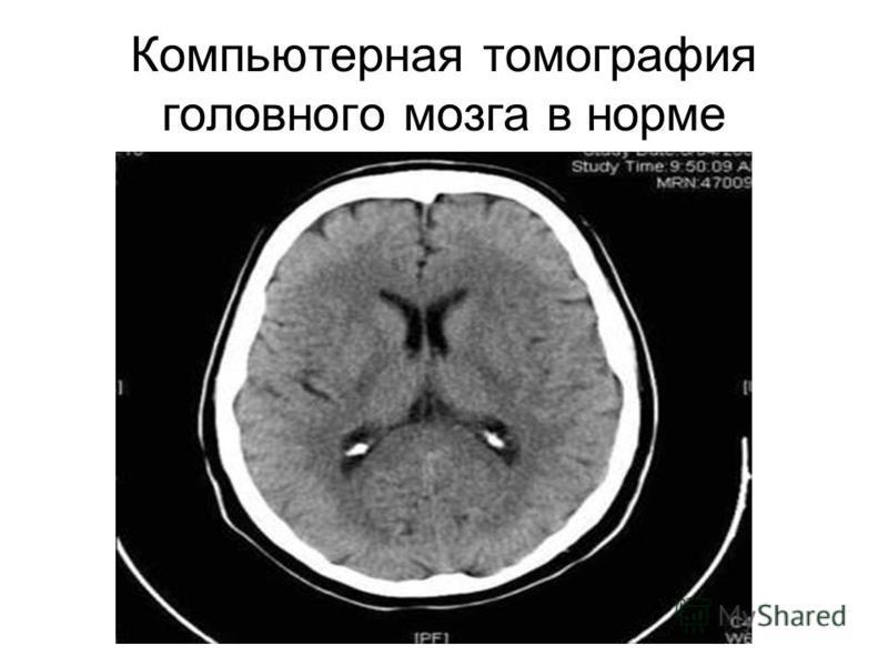 Компьютерная томография головного мозга в норме