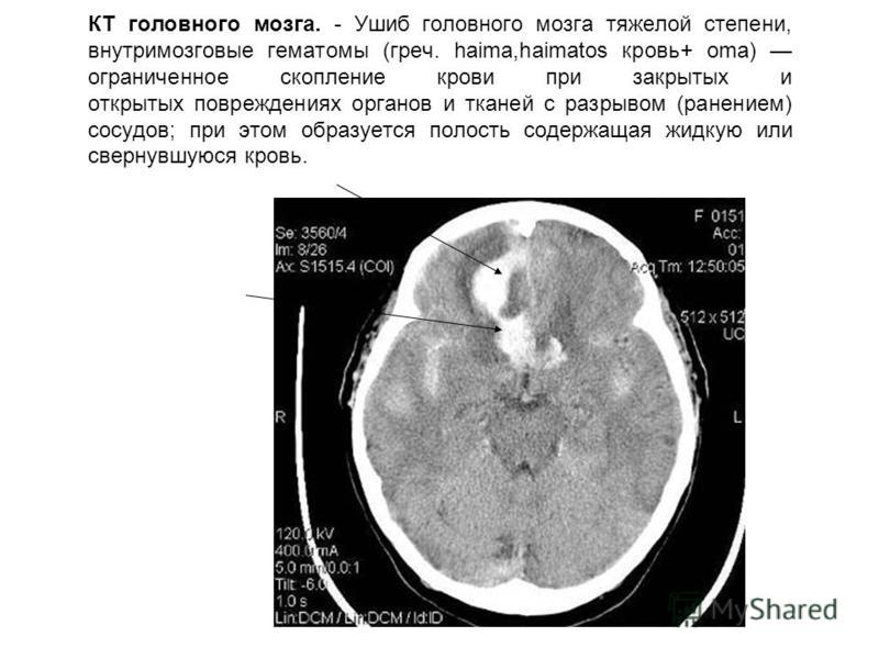 КТ головного мозга. - Ушиб головного мозга тяжелой степени, внутримозговые гематомы (греч. haima,haimatos кровь+ oma) ограниченное скопление крови при закрытых и открытых повреждениях органов и тканей с разрывом (ранением) сосудов; при этом образуетс