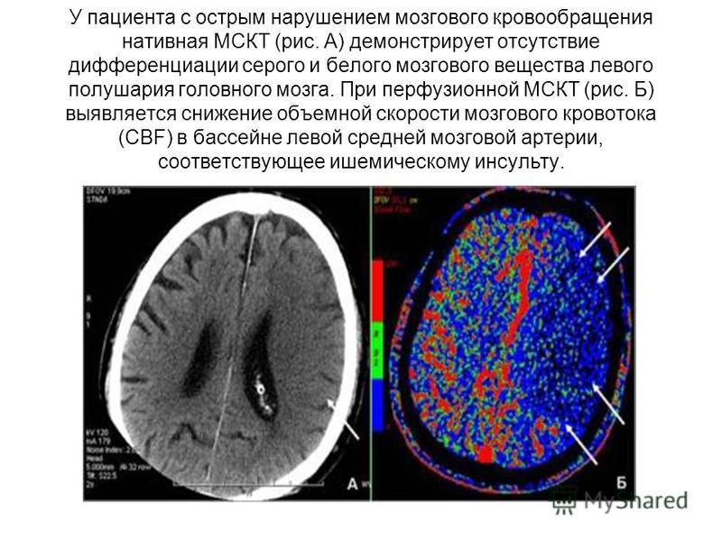 У пациента с острым нарушением мозгового кровообращения нативная МСКТ (рис. А) демонстрирует отсутствие дифференциации серого и белого мозгового вещества левого полушария головного мозга. При перфузионной МСКТ (рис. Б) выявляется снижение объемной ск