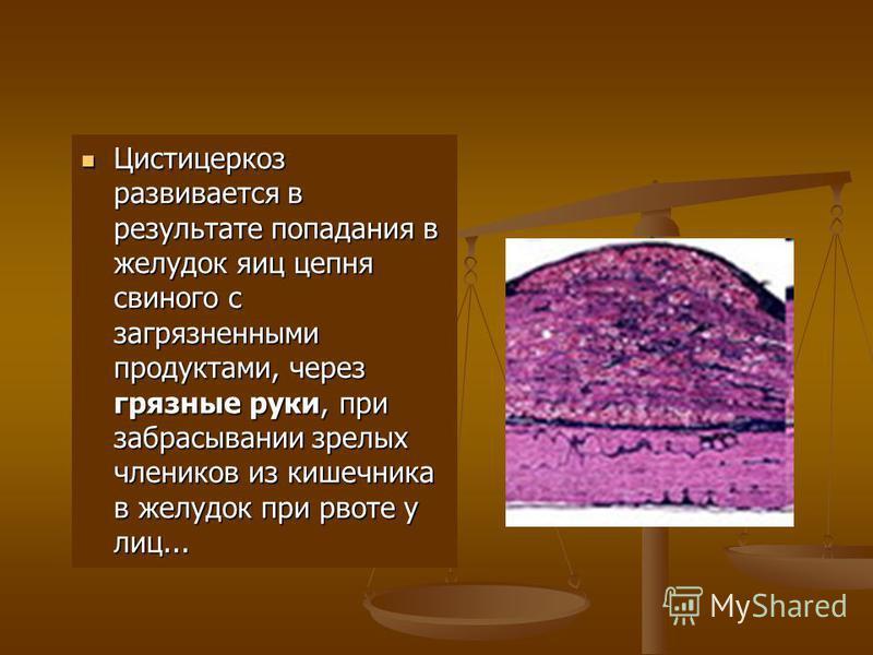 Цистицеркоз развивается в результате попадания в желудок яиц цепня свиного с загрязненными продуктами, через грязные руки, при забрасывании зрелых члеников из кишечника в желудок при рвоте у лиц... Цистицеркоз развивается в результате попадания в жел