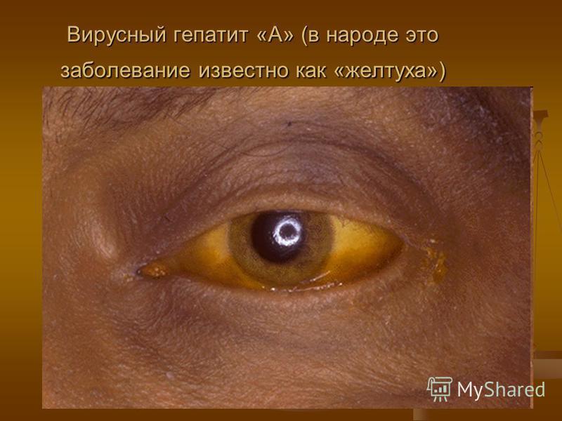 Вирусный гепатит «А» (в народе это заболевание известно как «желтуха»)