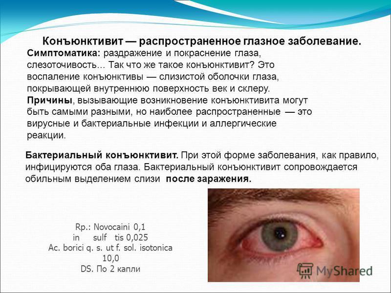 Бактериальный конъюнктивит. При этой форме заболевания, как правило, инфицируются оба глаза. Бактериальный конъюнктивит сопровождается обильным выделением слизи после заражения. Конъюнктивит распространенное глазное заболевание. Симптоматика: раздраж