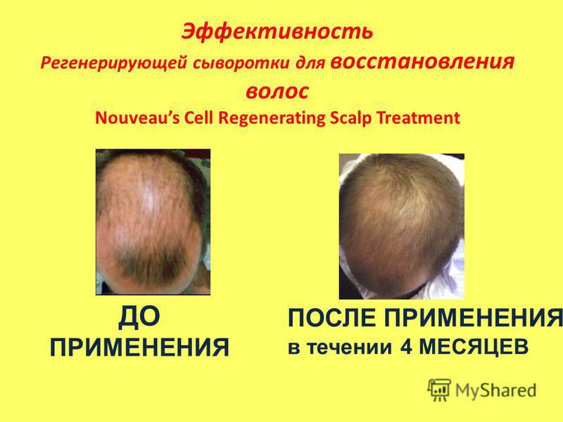 Эффективность Регенерирующей сыворотки для восстановления волос Nouveaus Cell Regenerating Scalp Treatment ДО ПРИМЕНЕНИЯ ПОСЛЕ ПРИМЕНЕНИЯ в течении 4 МЕСЯЦЕВ