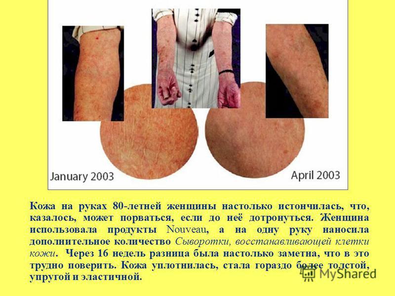 Кожа на руках 80-летней женщины настолько истончилась, что, казалось, может порваться, если до неё дотронуться. Женщина использовала продукты Nouveau, а на одну руку наносила дополнительное количество Сыворотки, восстанавливающей клетки кожи. Через 1