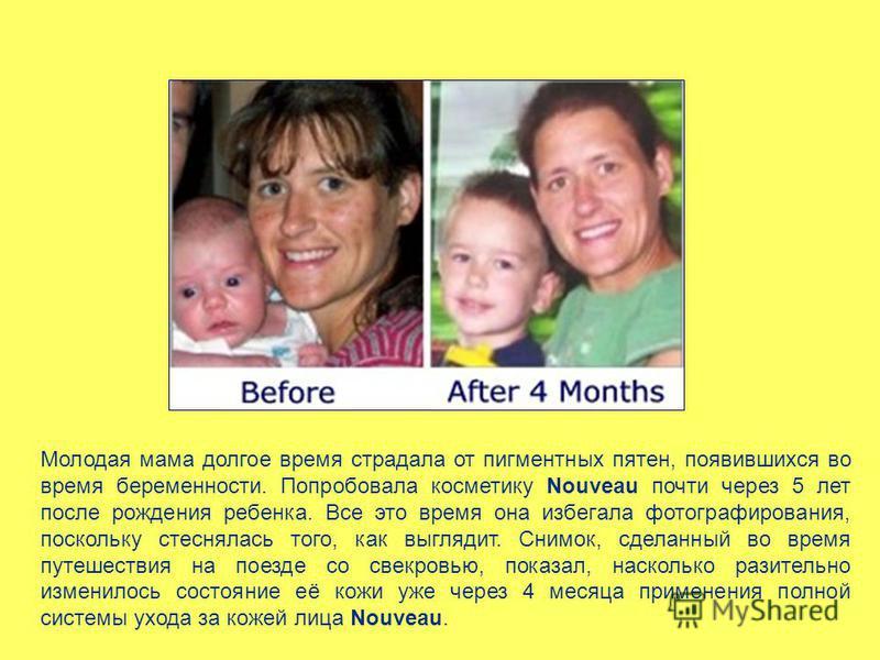 Молодая мама долгое время страдала от пигментных пятен, появившихся во время беременности. Попробовала косметику Nouveau почти через 5 лет после рождения ребенка. Все это время она избегала фотографирования, поскольку стеснялась того, как выглядит. С