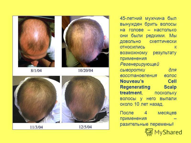 45-летний мужчина был вынужден брить волосы на голове – настолько они были редкими. Мы довольно скептически относились к возможному результату применения Регенерирующей сыворотки для восстановления волос Nouveaus Cell Regenerating Scalp treatment, по