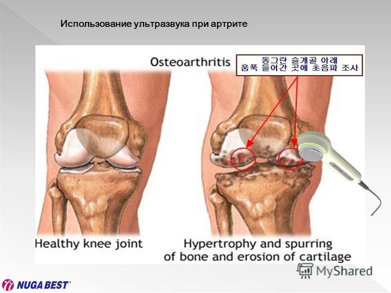 Использование ультразвука при артрите