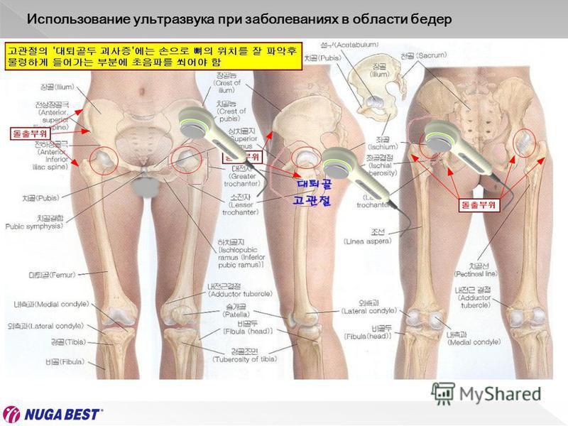 Использование ультразвука при заболеваниях в области бедер