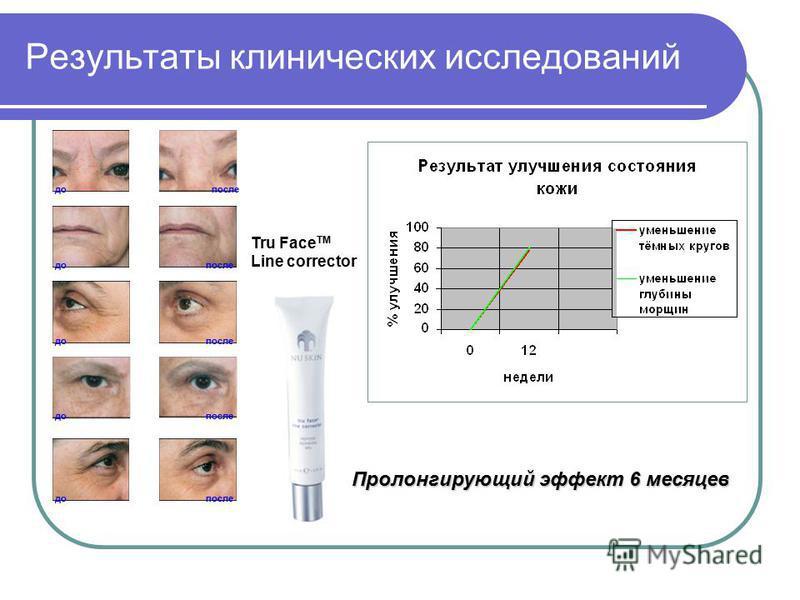 Результаты клинических исследований до после до после до после Пролонгирующий эффект 6 месяцев Tru Face TM Line corrector