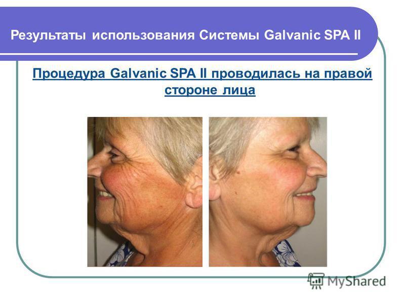 Процедура Galvanic SPA II проводилась на правой стороне лица Результаты использования Системы Galvanic SPA II