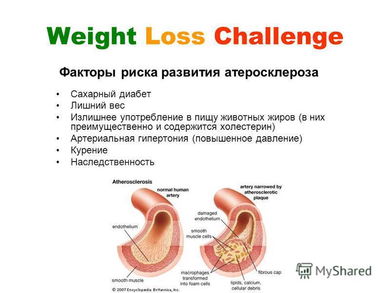 Weight Loss Challenge Сахарный диабет Лишний вес Излишнее употребление в пищу животных жиров (в них преимущественно и содержится холестерин) Артериальная гипертония (повышенное давление) Курение Наследственность Факторы риска развития атеросклероза