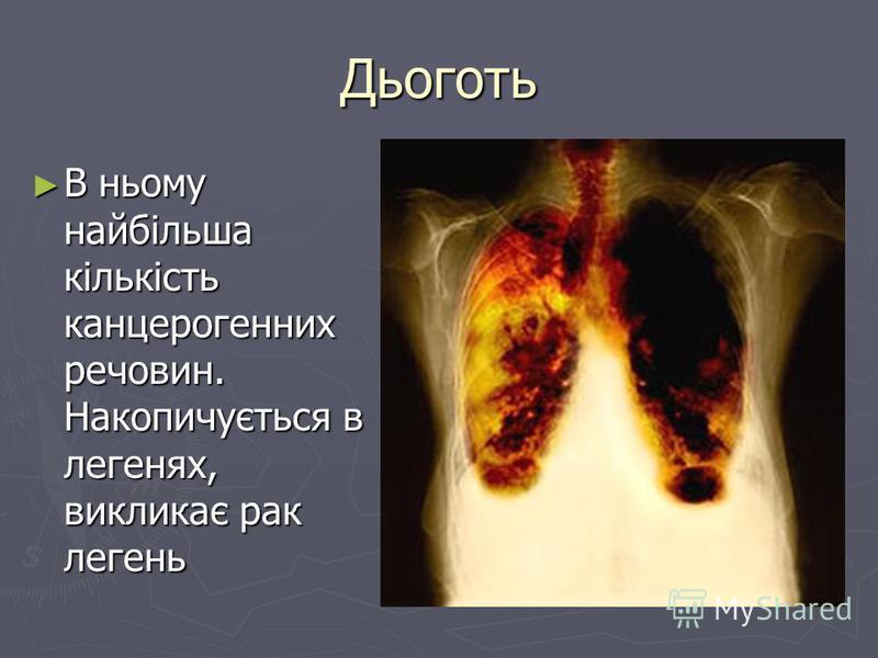 Дьоготь В ньому найбільша кількість канцерогенних речовин. Накопичується в легенях, викликає рак легень В ньому найбільша кількість канцерогенних речовин. Накопичується в легенях, викликає рак легень