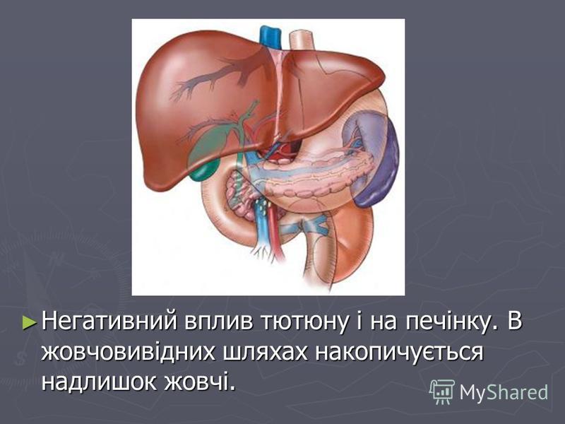 Негативний вплив тютюну і на печінку. В жовчовивідних шляхах накопичується надлишок жовчі. Негативний вплив тютюну і на печінку. В жовчовивідних шляхах накопичується надлишок жовчі.