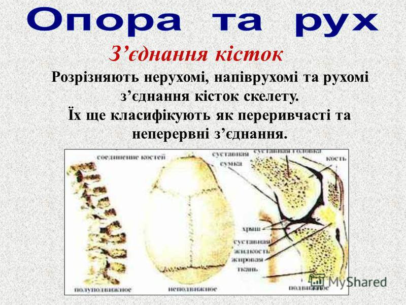 Зєднання кісток Розрізняють нерухомі, напіврухомі та рухомі зєднання кісток скелету. Їх ще класифікують як переривчасті та неперервні зєднання.