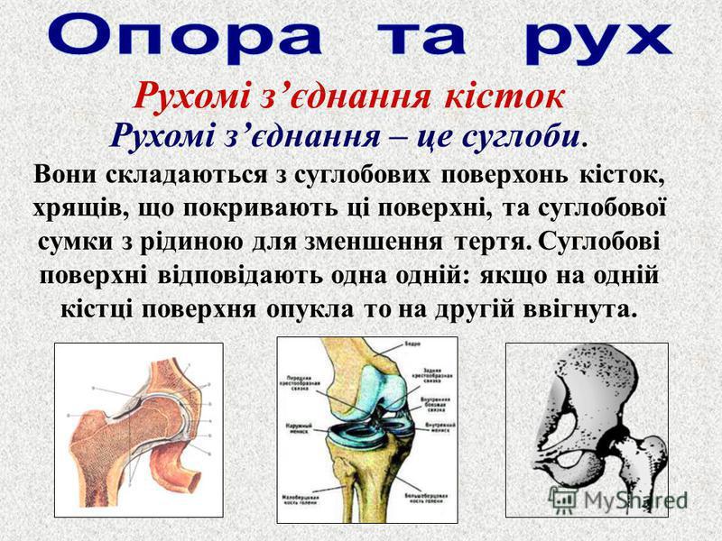Рухомі зєднання кісток Рухомі зєднання – це суглоби. Вони складаються з суглобових поверхонь кісток, хрящів, що покривають ці поверхні, та суглобової сумки з рідиною для зменшення тертя. Суглобові поверхні відповідають одна одній: якщо на одній кістц