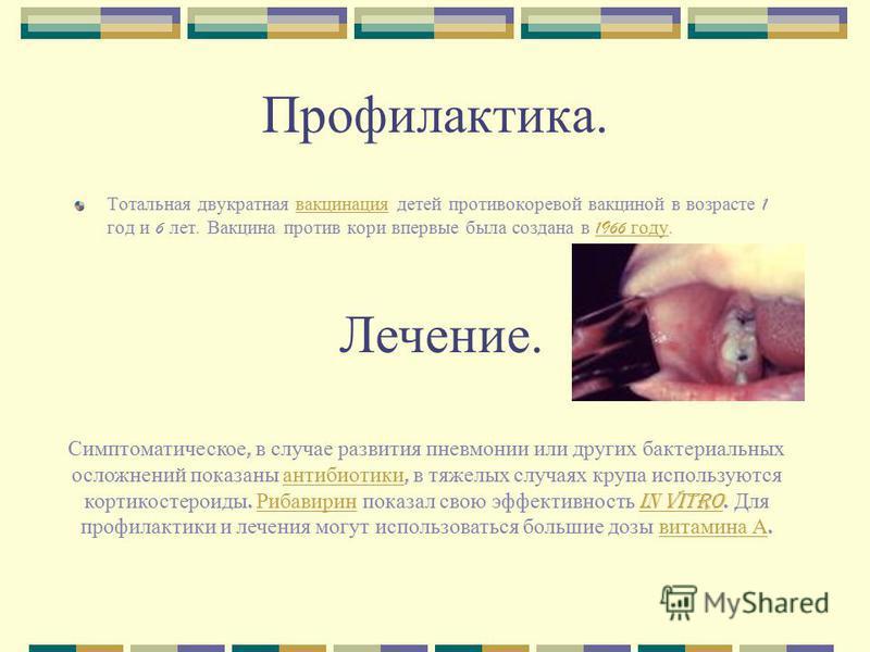 Профилактика. Тотальная двукратная вакцинация детей противокоревой вакциной в возрасте 1 год и 6 лет. Вакцина против кори впервые была создана в 1966 году. вакцинация 1966 году Симптоматическое, в случае развития пневмонии или других бактериальных ос