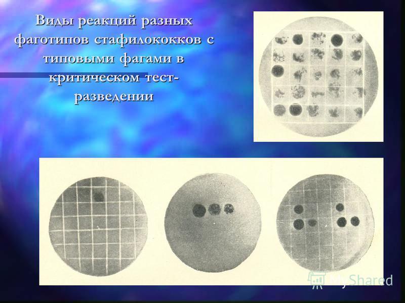 Виды реакций разных фаготипов стафилококков с типовыми фагами в критическом тест- разведении