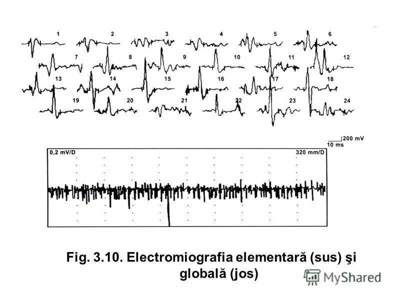 Fig. 3.10. Electromiografia elementară (sus) şi globală (jos)