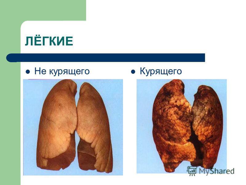 ЛЁГКИЕ Не курящего Курящего