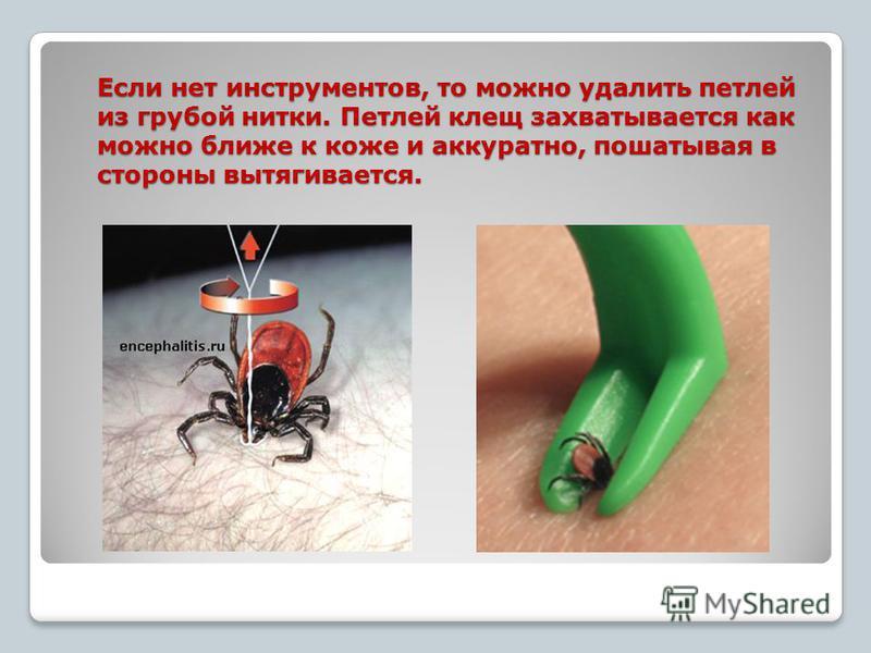 Если нет инструментов, то можно удалить петлей из грубой нитки. Петлей клещ захватывается как можно ближе к коже и аккуратно, пошатывая в стороны вытягивается.