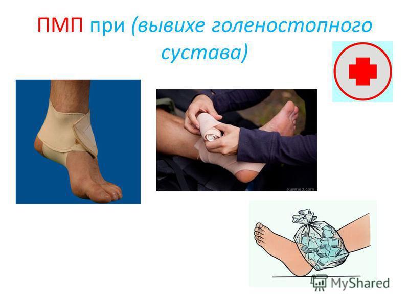 ПМП при (вывихе голеностопного сустава)