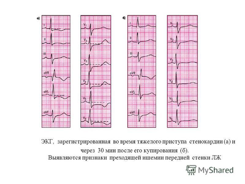 ЭКГ, зарегистрированная во время тяжелого приступа стенокардии (а) и через 30 мин после его купирования (б). Выявляются признаки преходящей ишемии передней стенки ЛЖ