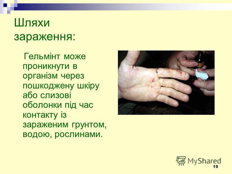 19 Шляхи зараження: Гельмінт може проникнути в організм через пошкоджену шкіру або слизові оболонки під час контакту із зараженим грунтом, водою, рослинами.